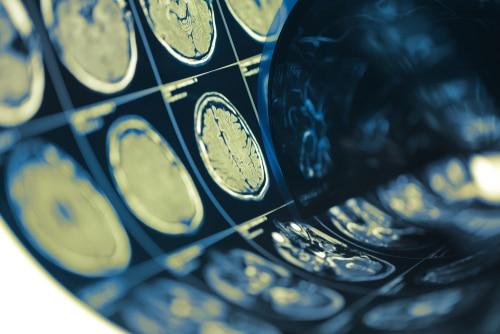Pediatric Concussion Research Study Continues